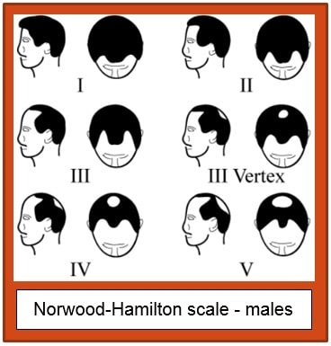 Norwood-Hamilton Scale